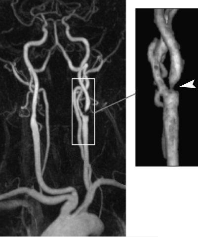 МР-ангиография артерий шеи с внутривенным контрастированием. Справа – увеличенное изображение бифуркации сонной артерии. Стрелка указывает на стеноз левой внутренней сонной артерии