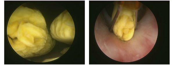 uretritis mint a prosztatitis oka)