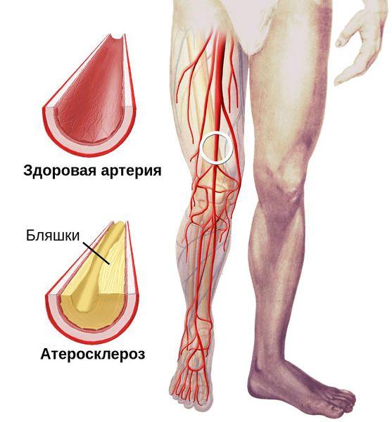 Артерия в норме и при атеросклерозе