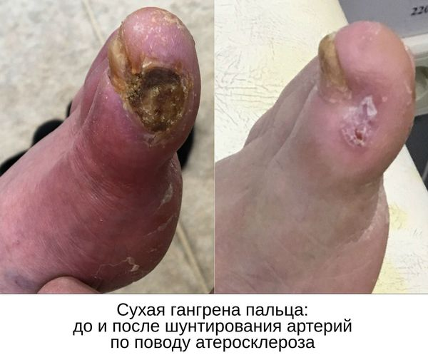 До и после шунтирования артерий