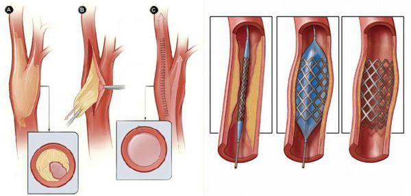 Удаление закупорки артерии/аутовенозное шунтирование