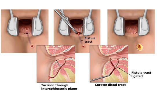 Перемещение лоскута слизистой оболочки