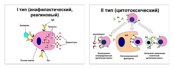 I и II тип аллергических реакций