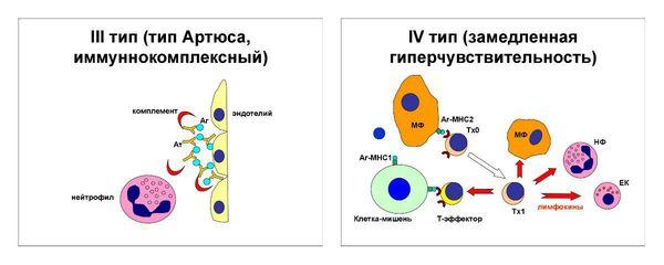 III и IV тип аллергических реакций