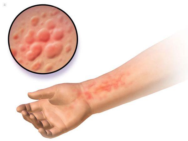 Токсикодермия/токсико-аллергический дерматит