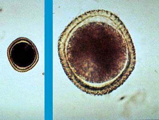 Обрастание паразитарных гранулёмы фиброзной капсулой