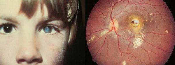Признаки глазного токсокароза