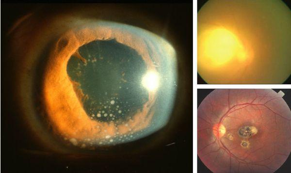 Глазной токсоплазмоз