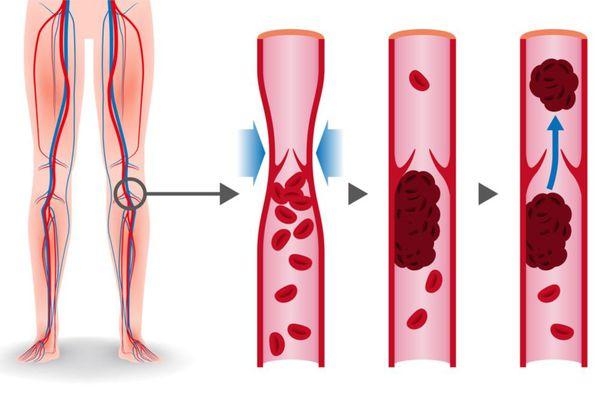 Оторвавшийся тромб — одна из причин закупорки лёгочной артерии