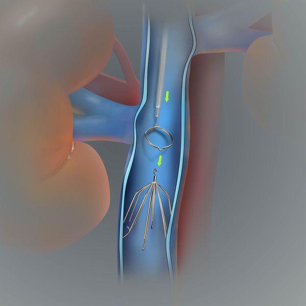 Имплантация кава-фильтра в нижнюю полую вену