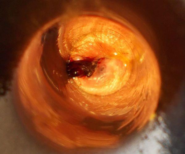 разрыв эпителия над тромбированным геморроидаьным узлом. Позднее обращение