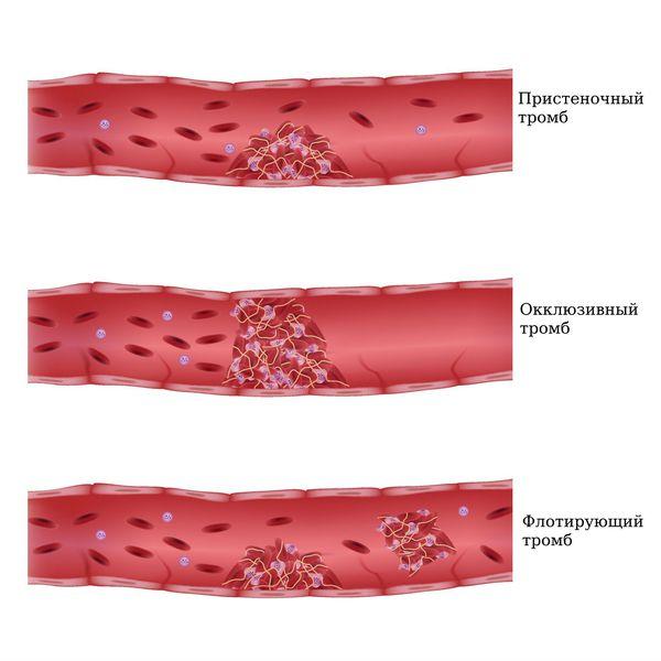 Классификация по степени фиксации проксимальной части тромба к венозной стенке