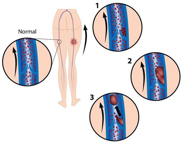 Венозный тромбоз начинается у венозных клапанов