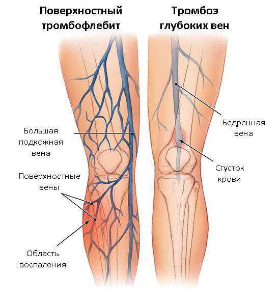 Тромбоз поверхностных и глубоких вен