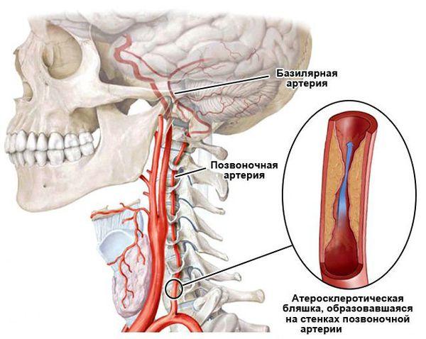 Нарушение кровообращения в позвоночных и базилярной артериях