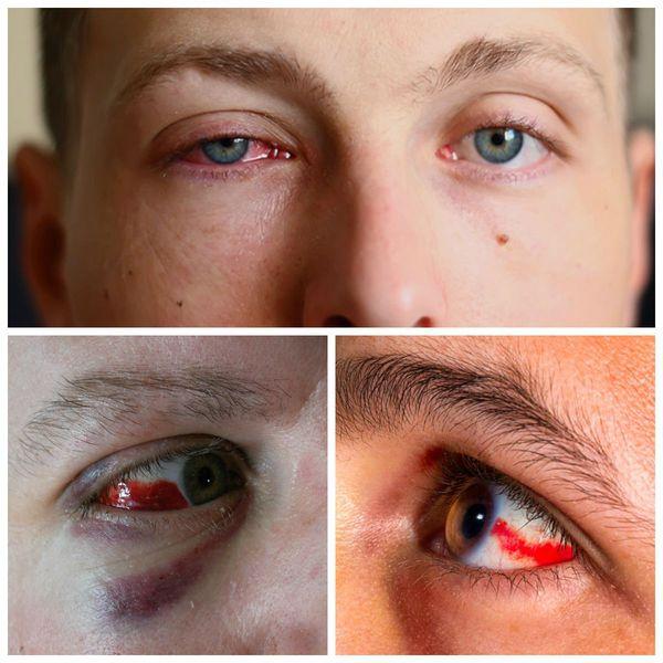 Отёк века и кровоизлияние в глаз