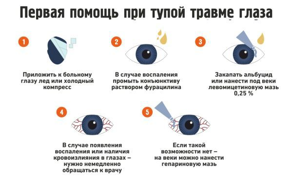 Первая помощь при ушибе глаза