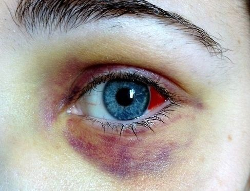 Состояние глаза после ушиба
