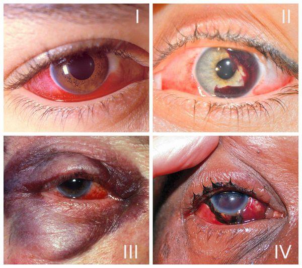 Степени тяжести ушиба глаза