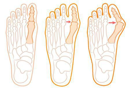 Процесс искривления первого пальца стопы