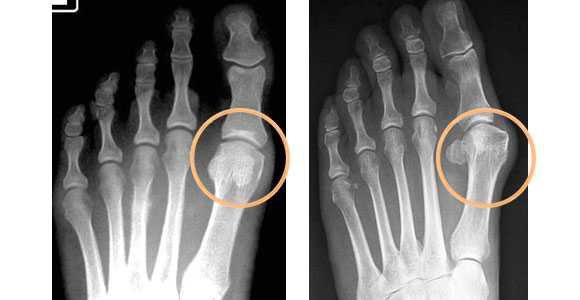 Рентген стопы при подагре 2