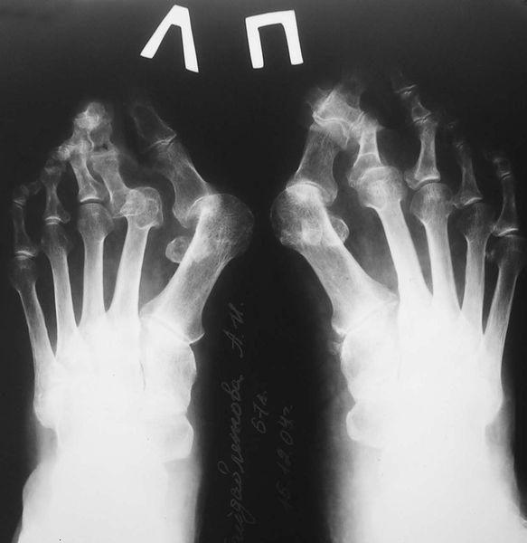 Деформирующий артроз плюсне-фаланговых суставов, рентгенография