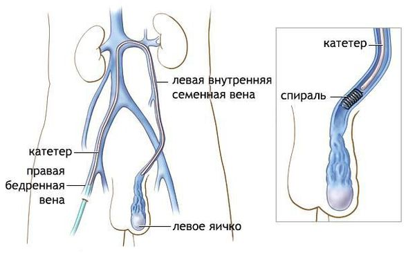 Эндоваскулярная окклюзия яичковой вены
