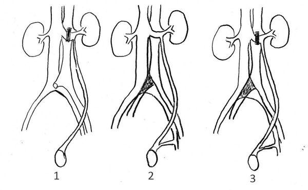 Типы варикоцеле