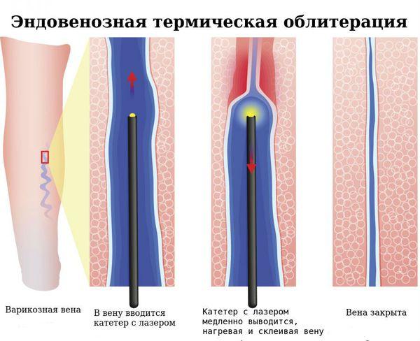 Эндовенозная термическая облитерация