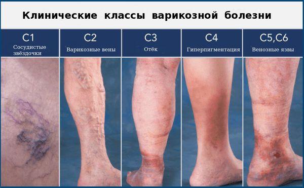 Клинические классы варикозной болезни