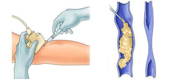 Склеротерапия (склеивание вены специальным препаратом)