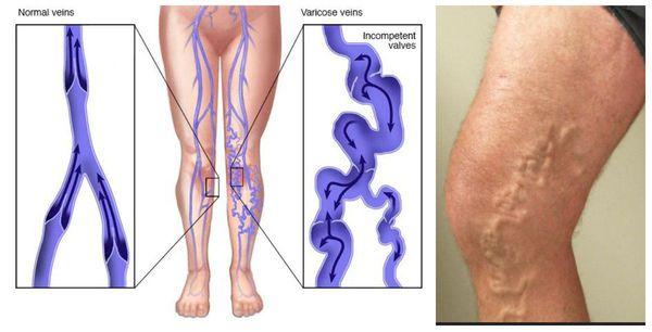 Спиралевидное закручивание варикозной вены