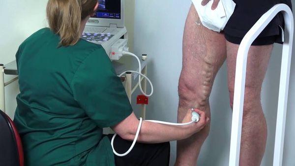 Ультразвуковое дуплексное сканирование