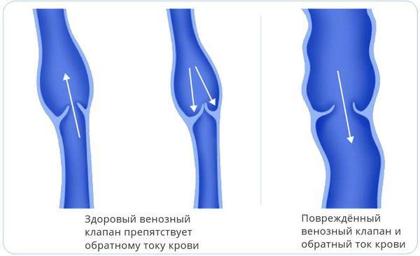 Здоровый и повреждённый клапаны вены