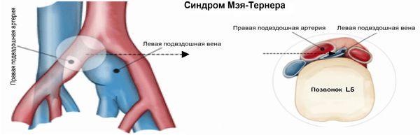 Синдром Мея — Тернера