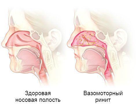 Обильное выделение слизи в носовой полости