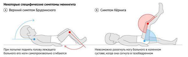 Симптомы Кернига и Брудзинского