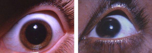 Депигментация радужки глаза