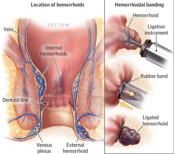 Лечение геморроя латексными кольцами