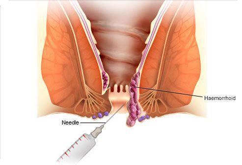 Степени мелкие кровотечения внутренних геморроидальных узлов геморрой парапроктит трещина анального