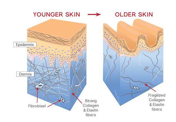 Признаки возрастных изменений кожи