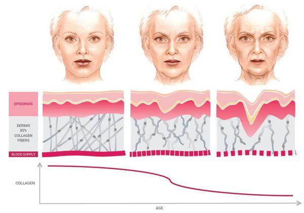 Истощение резервов кожи с возрастом