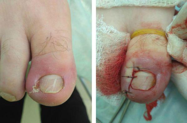 Вросший ноготь лечение до и после операции