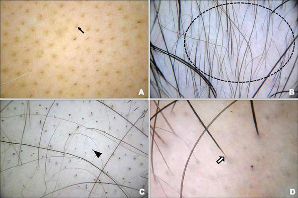 """А - """"жёлтые точки""""; В - пушковые волосы; С - """"чёрные точки""""; D - """"восклицательные знаки"""""""