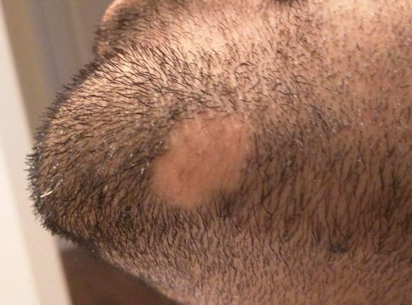 Alopecia areata barbae