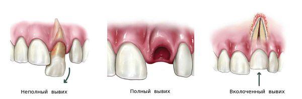 Классификация вывиха зуба