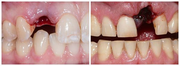 Полный вывих зуба
