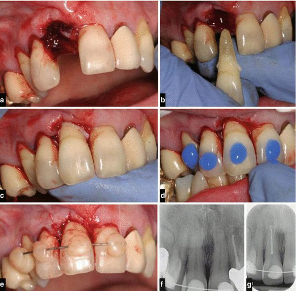 Реплантация и шинирование зуба при полном вывихе