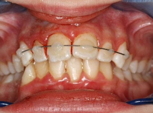 Шинирование травмированного зуба