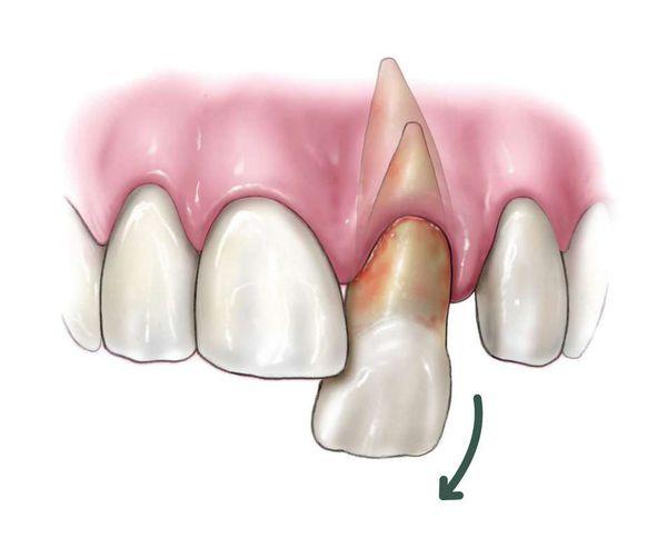 Вывих зуба с повреждением периодонта